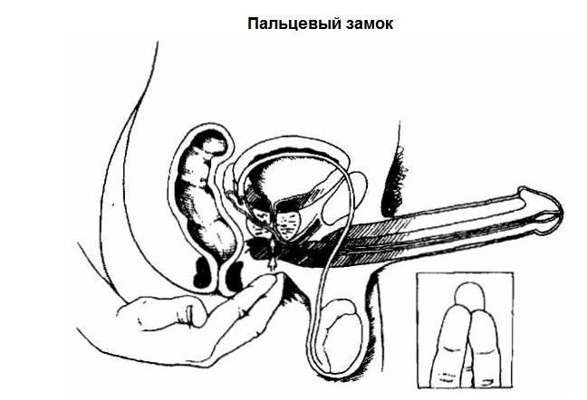 При начале полового акта пенис теряет эррекцию